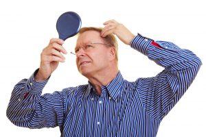 壮年性脱毛症